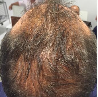 Que recomiendan los médicos a la caída de los cabello